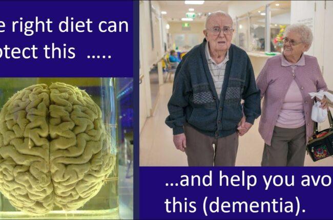 voorkom alzheimer en dementie door leefstijl door Dr. Paul Mason